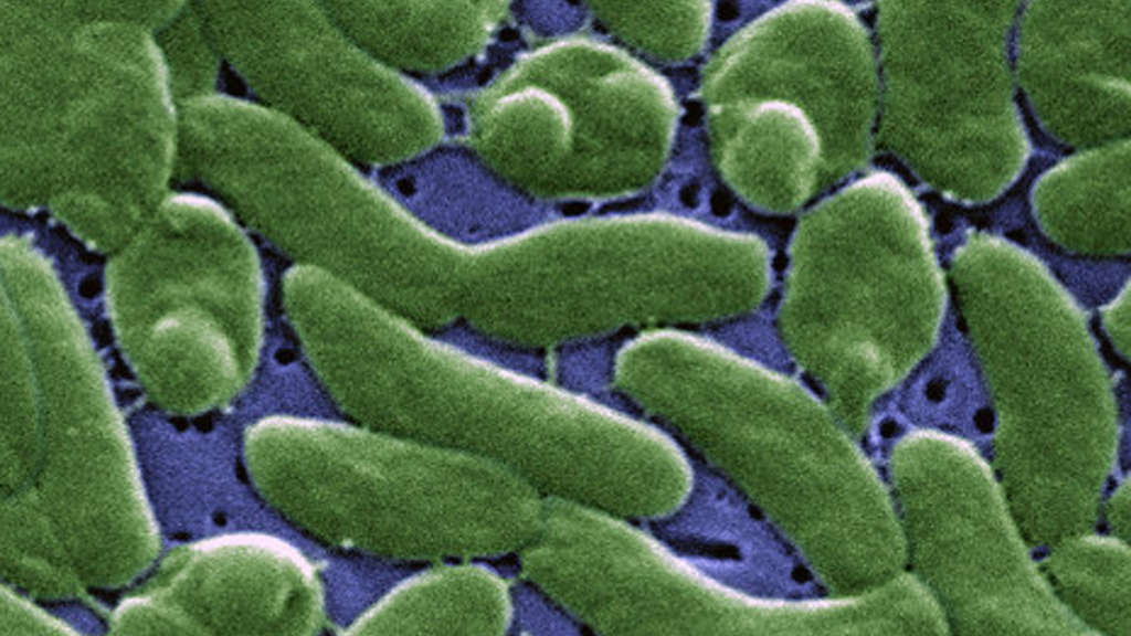 Vibrio vulnificus is a bacterium commonly found in warm, brackish waters and estuaries, although with the warming of the oceans, has been detected in more northern waters as well.
